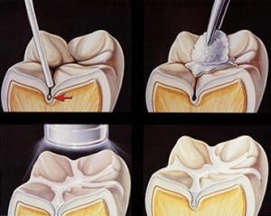 dental-sealants2