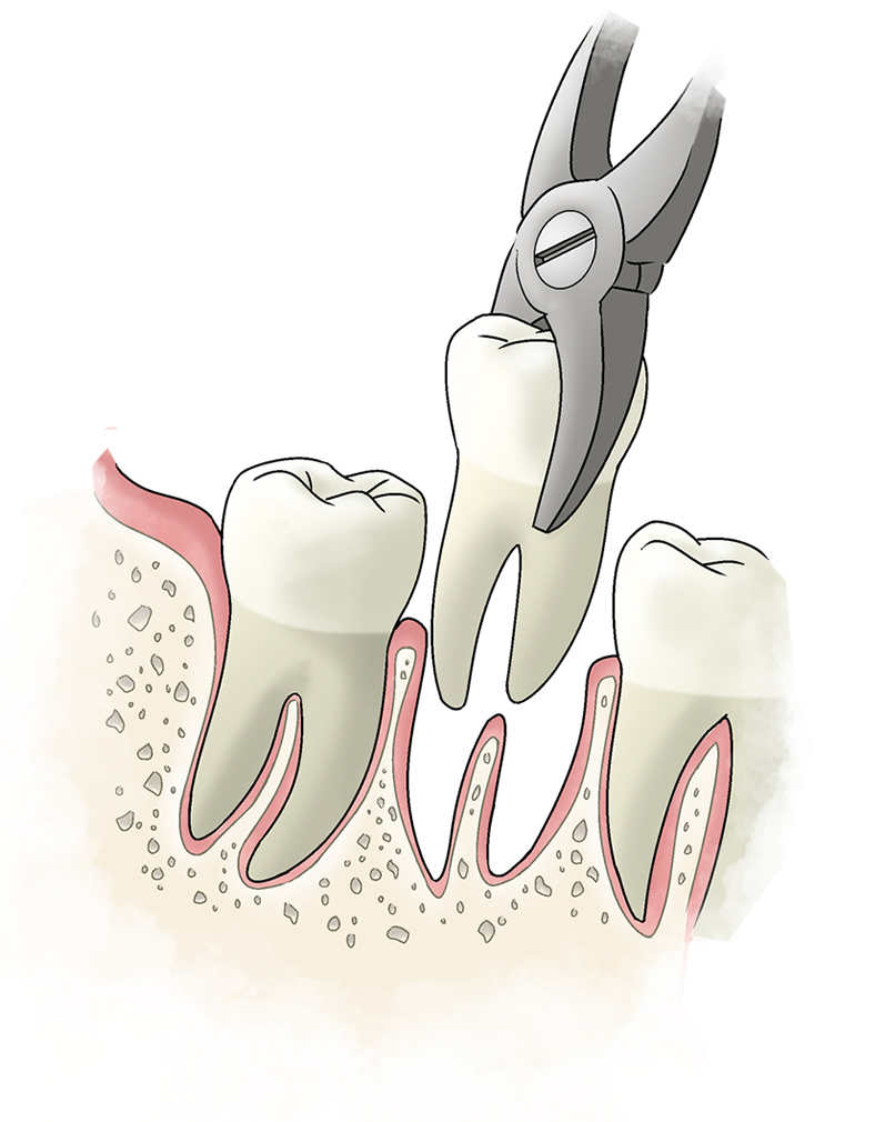 tooth-extraction-large
